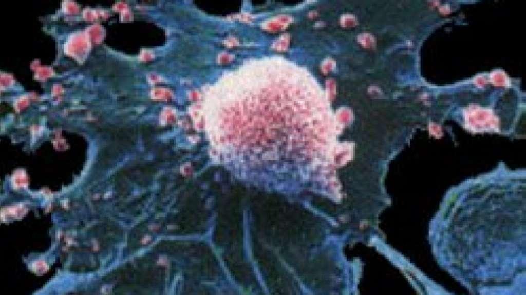 Investigadores estudam mecanismos envolvidos na resistência à terapia do cancro