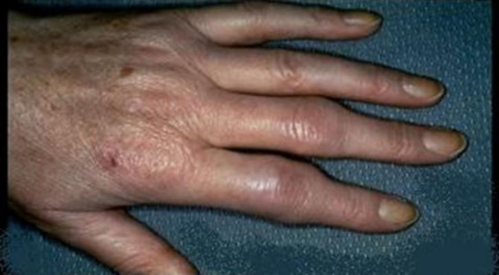 Projeto europeu de 6ME vai mimetizar tecidos atingidos pela artrite reumatoide
